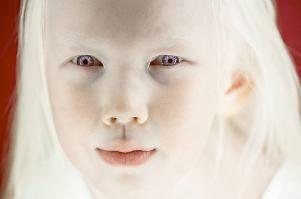 Everyone is talking about this eight-year-old girl nicknamed the Siberian Snow White