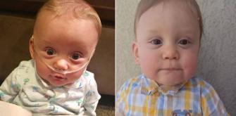 The boy who lived... Mum celebrates sons first birthday after a very traumatic year