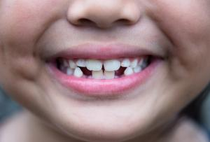 Wait, WHAT? UK tooth fairy economy is apparently worth £450 million