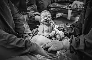 Amazing: photographer captures the unique beauty of c-sections